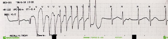 不整脈心電図