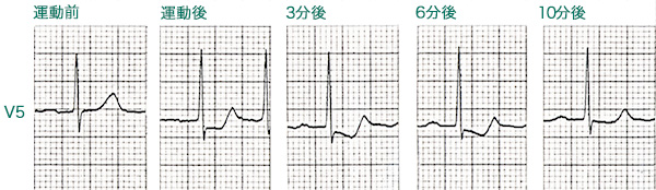 運動負荷により誘発される狭心症患者の心電図変化