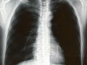 正常者の胸部X線写真