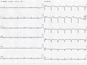 古い心筋梗塞患者の12誘導心電図